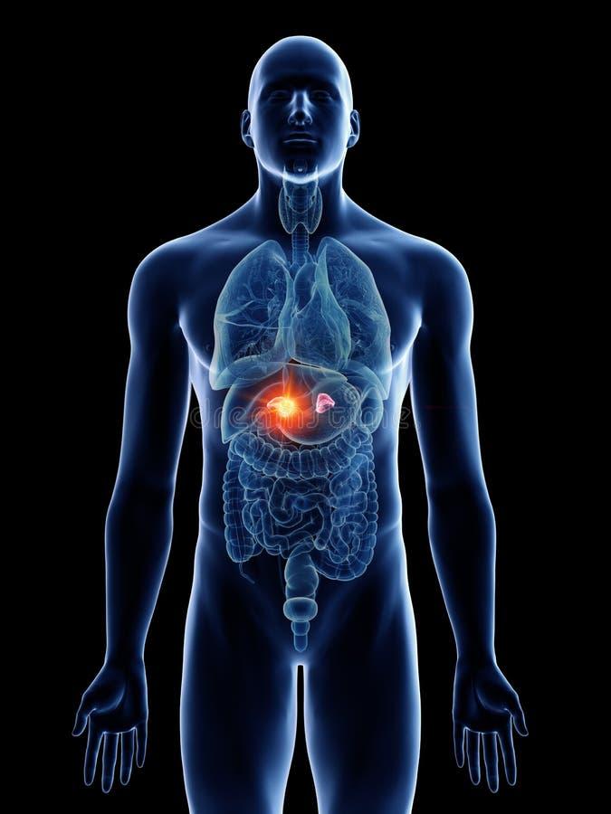 Bemannt Nebennierekrebs lizenzfreie abbildung