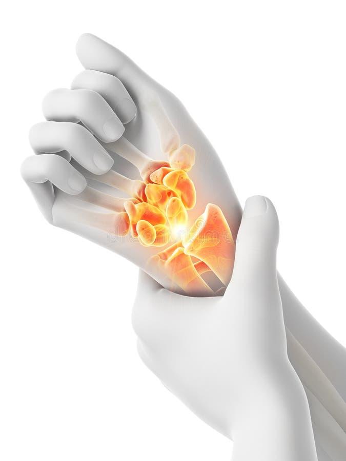 Bemannt schmerzliches Handgelenk stockbilder