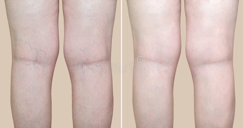 Ben av en kvinna med åderbråcks åder och medicinsk behandling för kapillär före och efter royaltyfri bild
