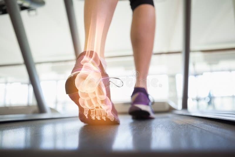 Benadrukte voetbeenderen van joggingvrouw stock fotografie