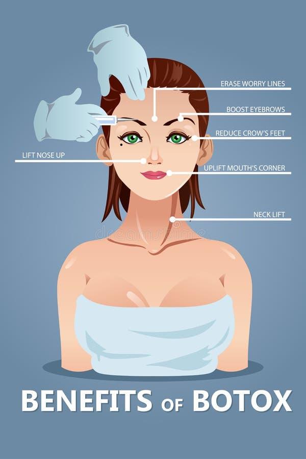 Benefici di Botox illustrazione di stock