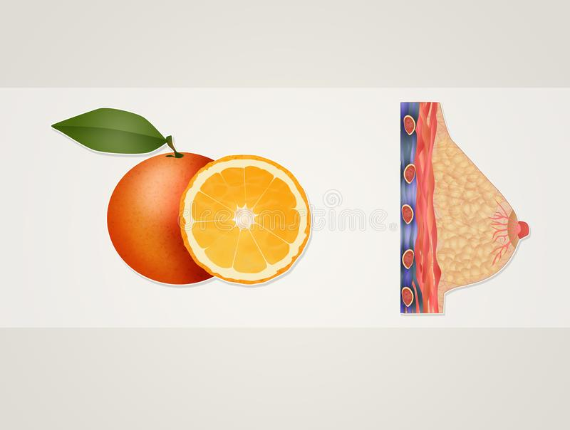 The benefits of oranges on the breast. Illustration of the benefits of oranges on the breast vector illustration