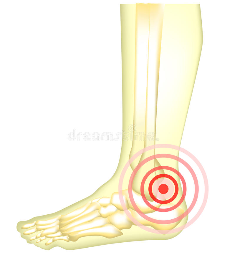 Benenpijn vector illustratie