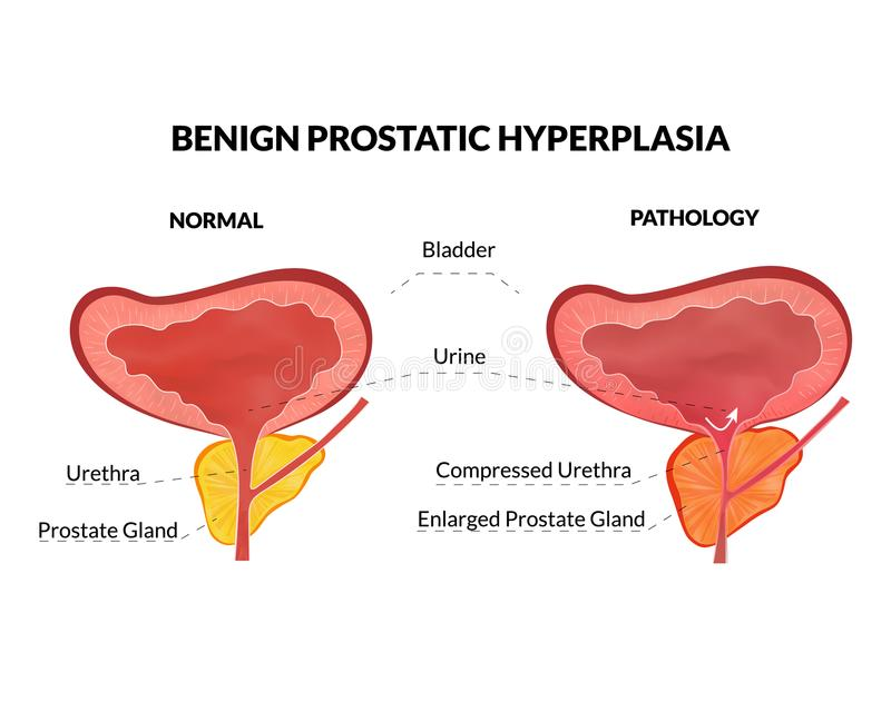 Benign prostatic hyperplasia. Is an non lethal pathology with timely treatment vector illustration