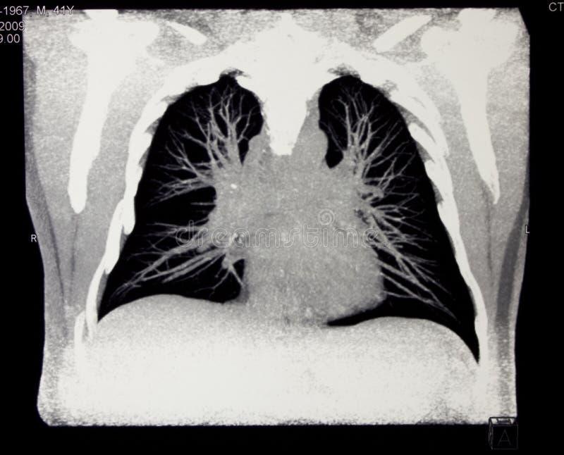 beräknad tomography för bröstkorg royaltyfria bilder