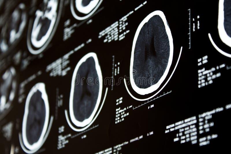 Berechnungs- Tomographie CT lizenzfreies stockbild