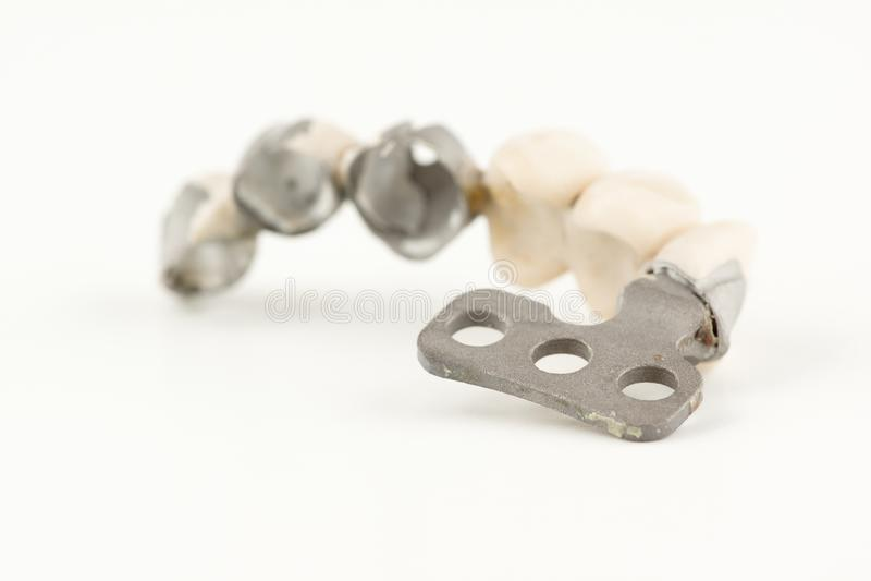 Beschadigde tandprothese stock afbeeldingen