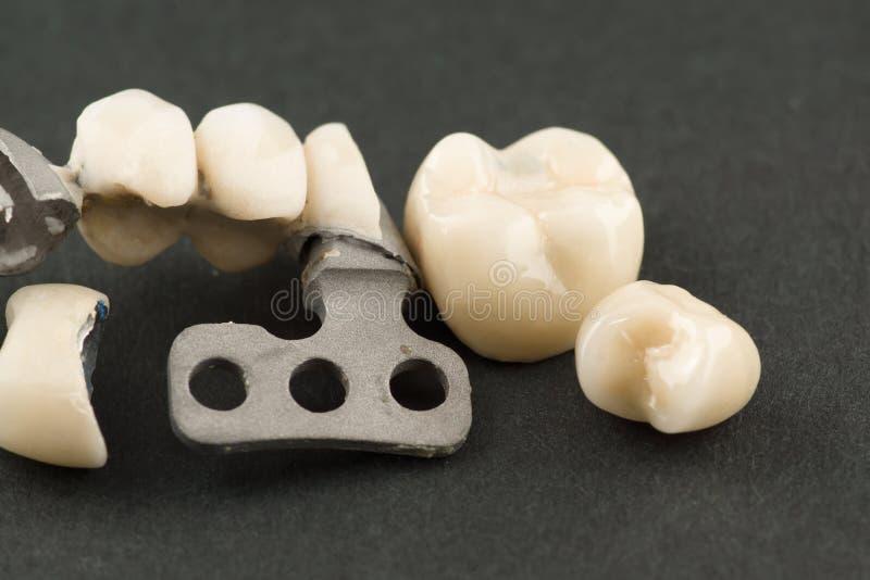 Beschadigde tandprothese stock foto's