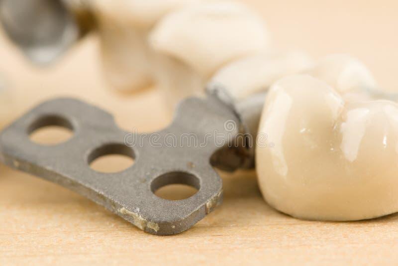 Beschadigde tandprothese royalty-vrije stock afbeelding