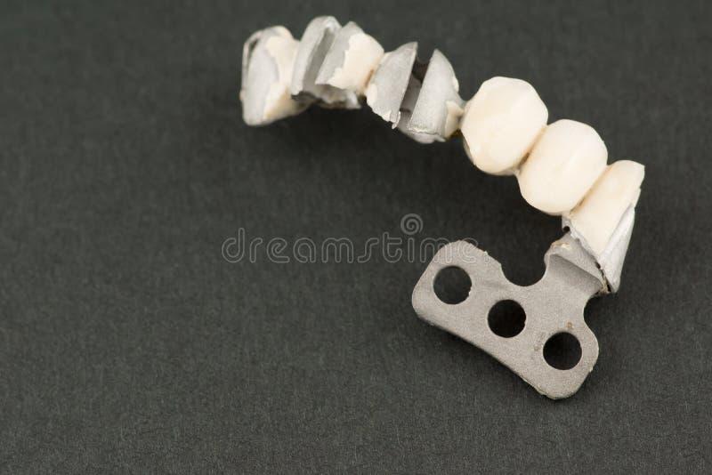 Beschadigde tandprothese royalty-vrije stock fotografie