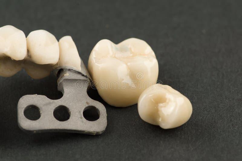 Beschadigde tandprothese stock afbeelding