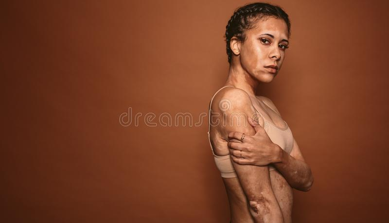 Betroffene junge Frau des Vitiligo im Studio lizenzfreie stockfotografie