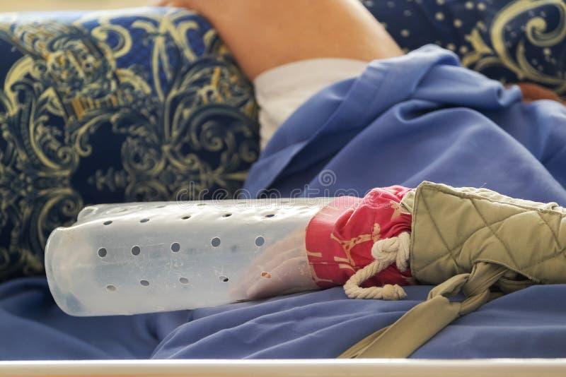 Bettlässiger Patient mit einem verkratzenden Schutz auf seiner Hand lizenzfreie stockfotografie