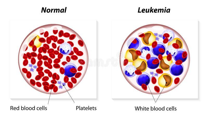Białaczka lub białaczka ilustracja wektor