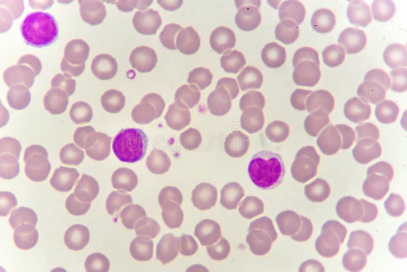 Białe komórki krwi w krwionośnym rozmazie fotografia royalty free