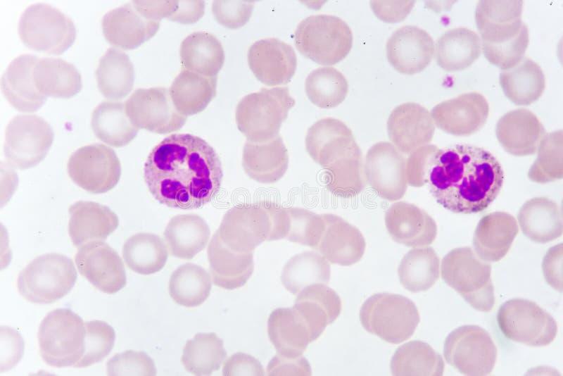 Białe komórki krwi w krwionośnym rozmazie obraz stock