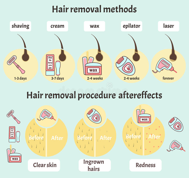 Big hair removal infographic royalty free illustration