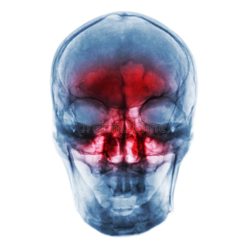 bihåleinflammation Filma röntgenstrålen av den mänskliga skallen med inflammerat på bihålan arkivbilder
