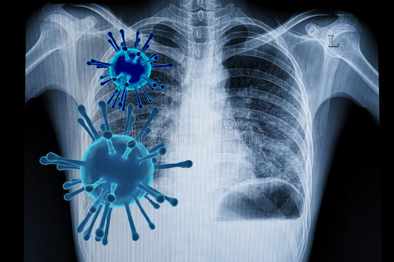 bilateral corona virus pneumonia royalty free stock image