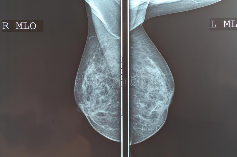 Bild för röntgenstråle för Mammographybröstbildläsning arkivbild