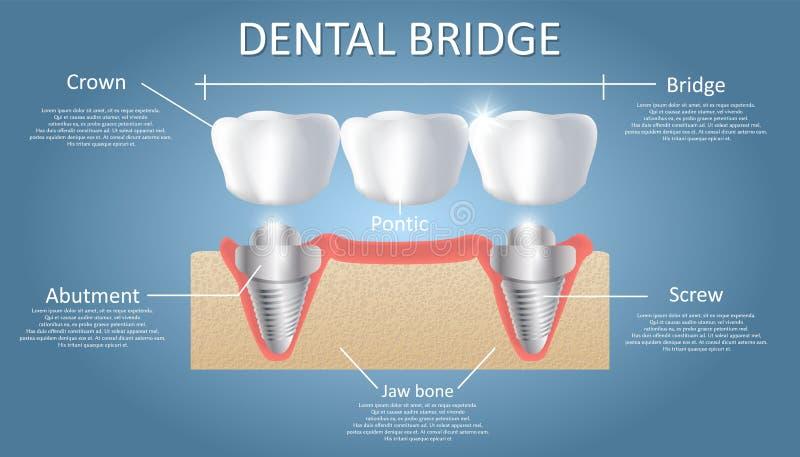 Bildande affisch f?r tand- brobegreppsvektor, diagram stock illustrationer