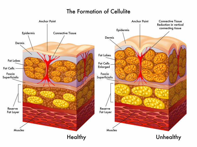 Bildande av cellulite stock illustrationer