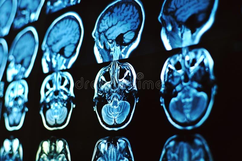 Bildbildläsning för magnetisk resonans av hjärnan MRI-film av en mänsklig skalle och hjärna Neurologibakgrund royaltyfria bilder