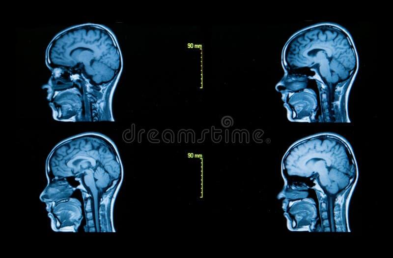 Bilder från en datoriserad tomography av hjärnan royaltyfria foton