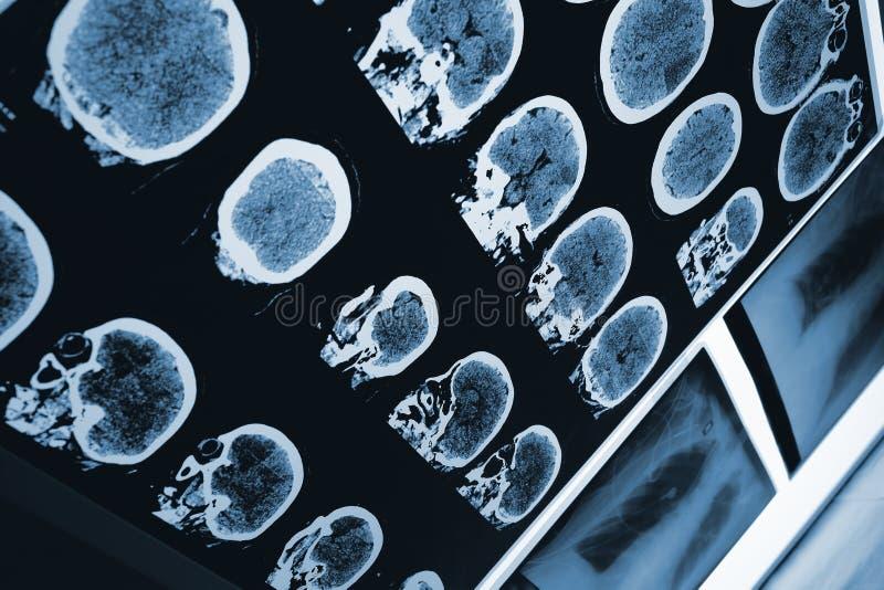 Bildläsning av hjärnan och skallen royaltyfri bild