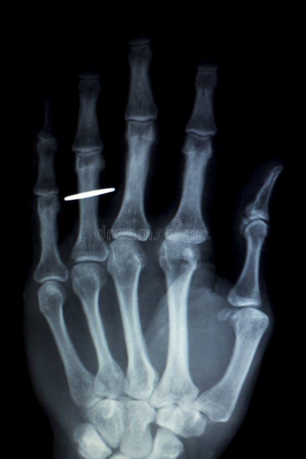 Bildläsning för röntgenstråle för handfingerimplantat royaltyfria foton