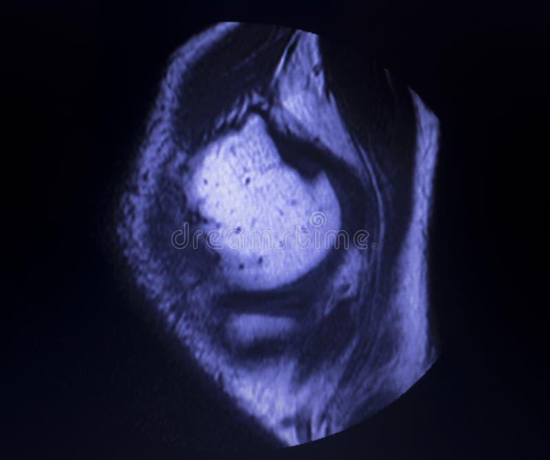 Bildläsning för reva för MRI-knämenisk arkivbilder