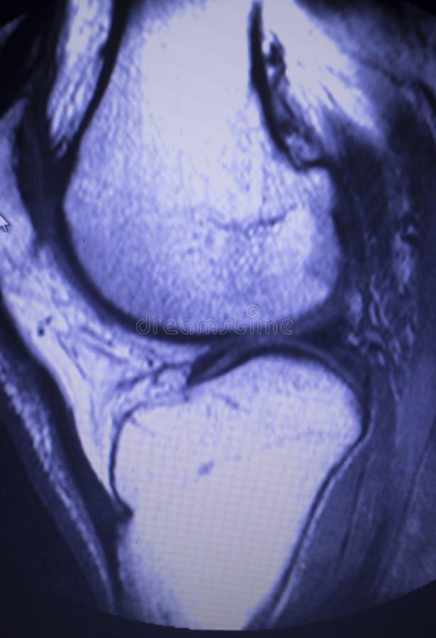 Bildläsning för reva för MRI-knämenisk arkivfoto