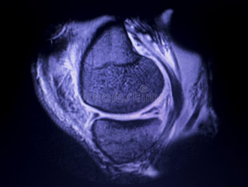 Bildläsning för reva för MRI-knämenisk royaltyfria bilder