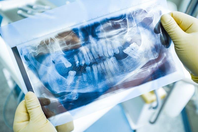 Bildläsning för tandläkarestudieröntgenstråle för det att inplantera royaltyfri bild