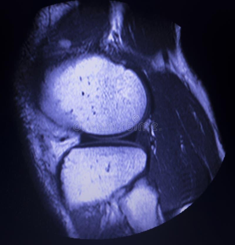 Bildläsning för reva för MRI-knämenisk royaltyfria foton