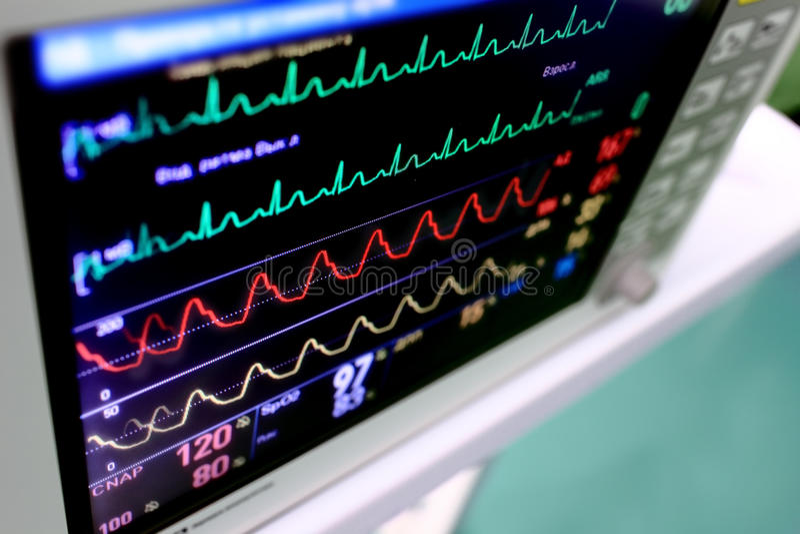 Bildskärm med varicolored scheman (kurvor) arkivfoton