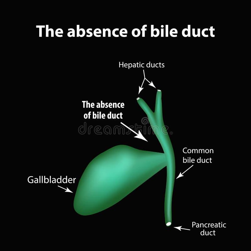 Η απουσία bile-duct Παθολογία της χοληδόχου κύστης Χοληδόχος κυστίτιδα Η δομή της χοληδόχου κύστης Infographics διανυσματική απεικόνιση