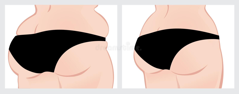 Billen before and after gewichtsverlies stock afbeelding