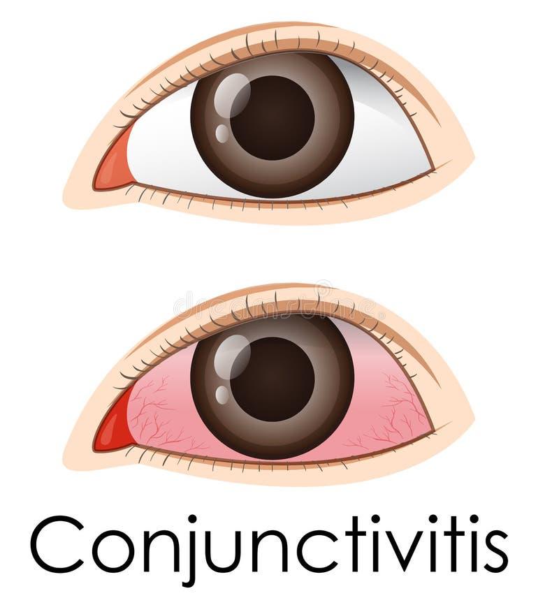 Bindhinneinflammation i mänskliga ögon royaltyfri illustrationer