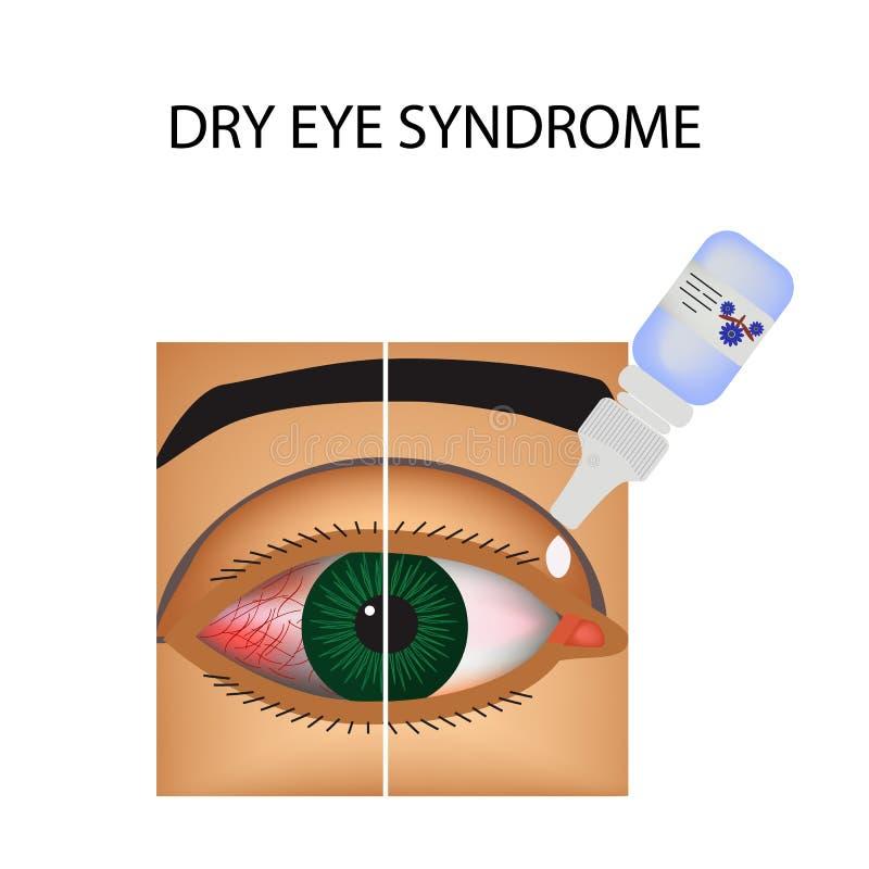bindhinneinflammation Rodnad och inflammation av ögat skyttlar Ögondroppar behandling Infographics också vektor för coreldrawillu stock illustrationer