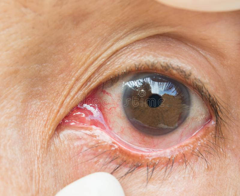 Bindvliesontsteking in de oogvrouwen royalty-vrije stock afbeelding