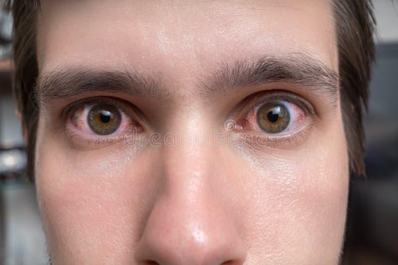 Bindvliesontsteking of irritatie van gevoelige ogen Close-upmening over rode ogen van een mens royalty-vrije stock fotografie