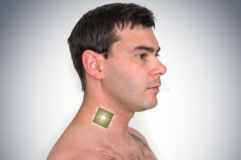 Bionic chip processor implant in male human body. Future technology and cybernetics concept stock photography
