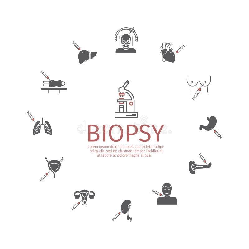 Biopsia: Tipos de procedimientos de la biopsia usados para diagnosticar el cáncer stock de ilustración