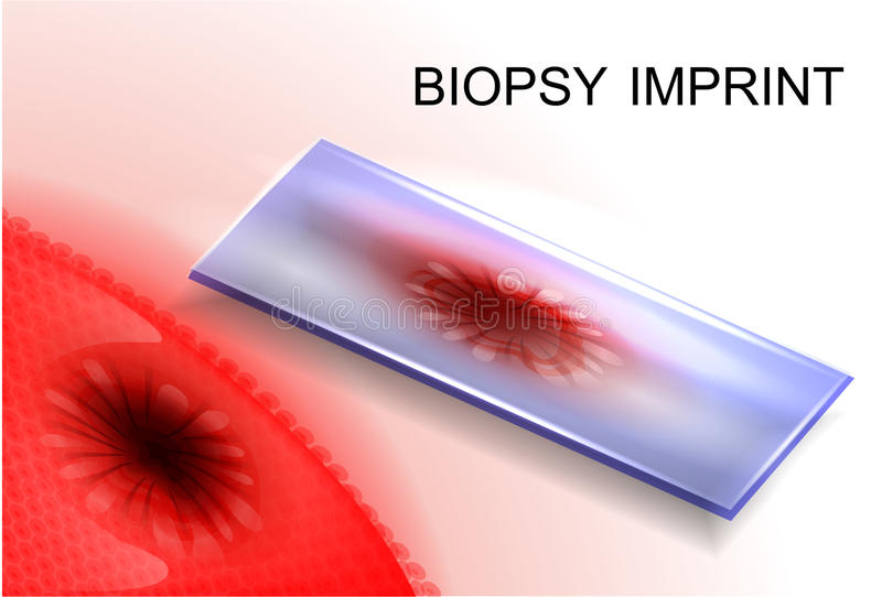 Biopsieafdruk diagnose van kanker royalty-vrije illustratie