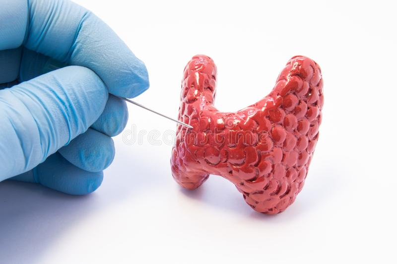 Biopsy of thyroid gland procedure. Doctor hold puncture needle in hand near anatomical 3D model of thyroid gland, ready to pierce. Its tissue. Concept photo for stock photos