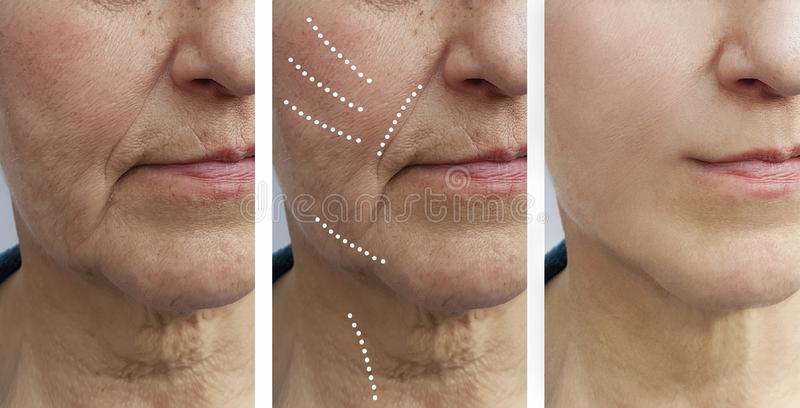 Biorevitalization mayor del retiro de las arrugas de la mujer antes y después de la diferencia de la elevación foto de archivo libre de regalías