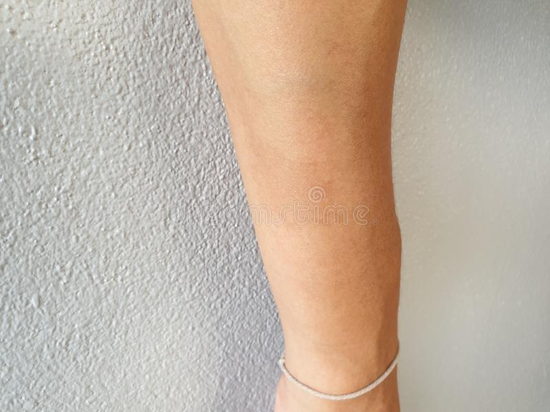 Birthmark on arm surface. Almost harmonious and invisible. Brown mark on arm skin stock images