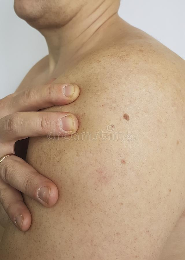 Birthmark, man. Birthmark, belly man hospital healthcare, people stock photo