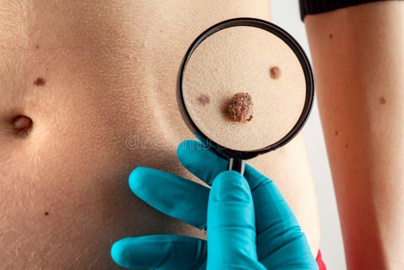 birthmark Dermatologe überprüft Mole stockfotografie